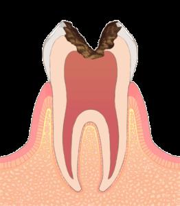C3(神経まで進行した虫歯)