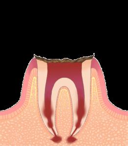 C4(歯の根まで進行した虫歯)