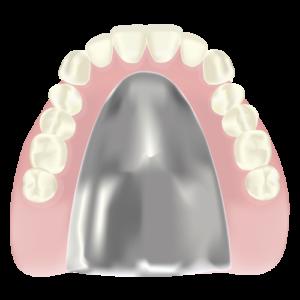 金属床義歯の特徴