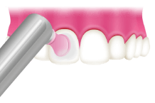 2 歯面の磨き上げ(ポリッシング)