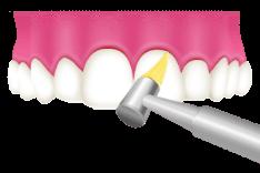 1 歯面と歯の隙間の清掃