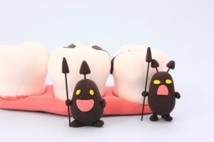 虫歯とは?