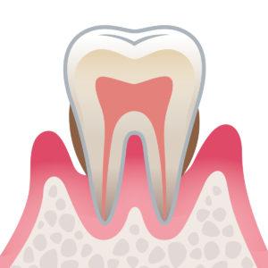 3 中度歯周病