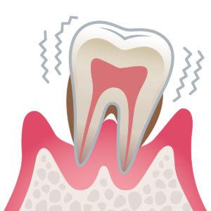 4 重度歯周病