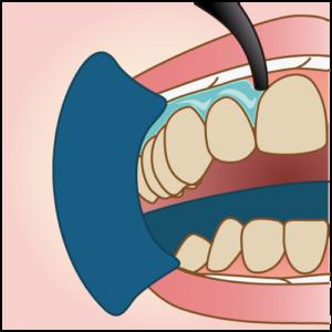 唇・歯茎の保護