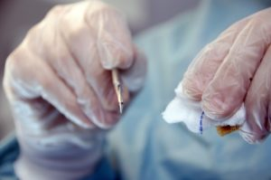 2. 表面麻酔と注射麻酔で痛みを最小限に抑える